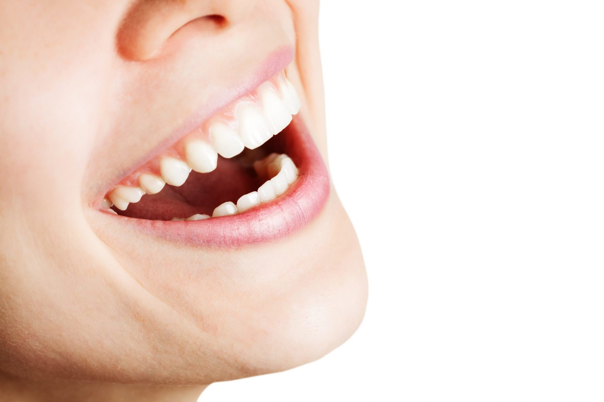 What Are Tooth Colored Fillings?