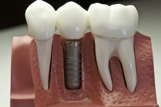 artificial model of dental implants